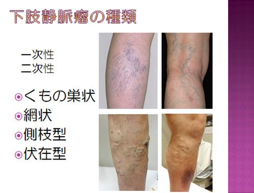 下肢静脈瘤について   東京高輪...
